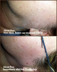 dermaplane about face 2