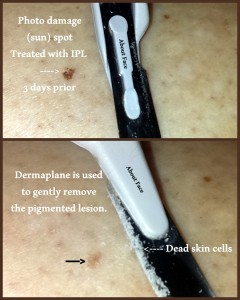 dermaplane about face